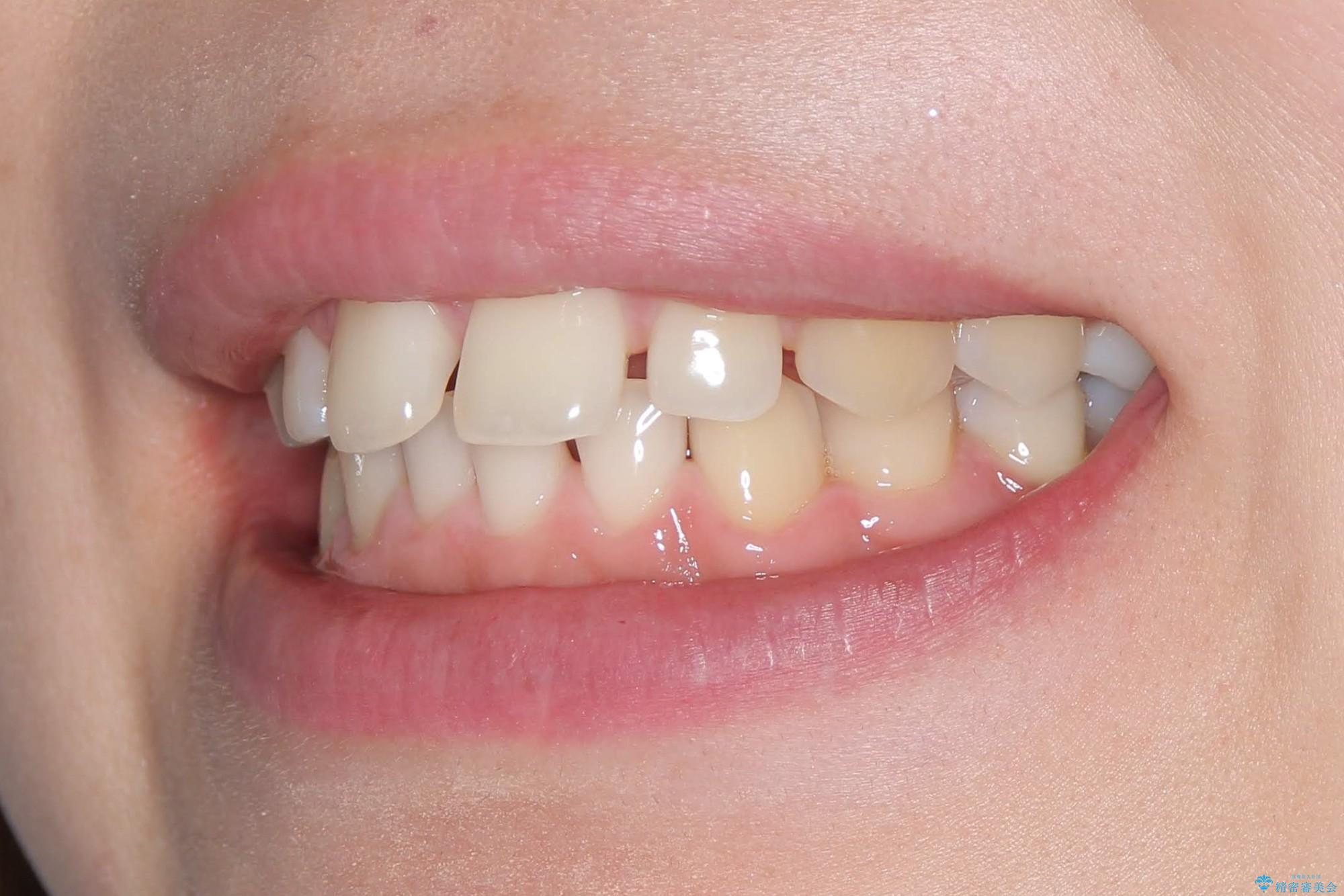 インビザラインでスキッ歯をきれいになおす invisalignの治療前(顔貌)