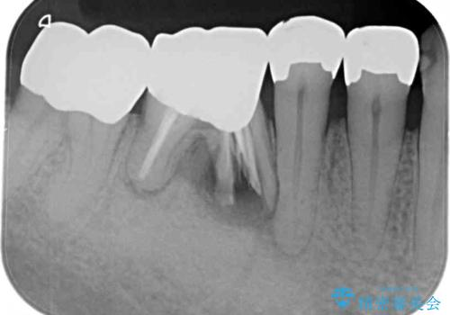 割れた奥歯 ゴールドブリッジによる補綴治療の治療前
