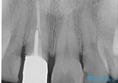 金属製の前歯をメタルフリーにしたい 単独前歯のセラミック処理の治療前