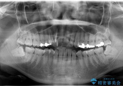 八重歯と反対咬合、下の前歯が1本少ない インビザラインによる非抜歯治療 invisalignの治療前