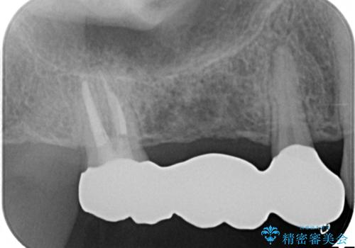 分岐部病変の奥歯→一見問題なさそうだが、抜歯しなければならないの治療後