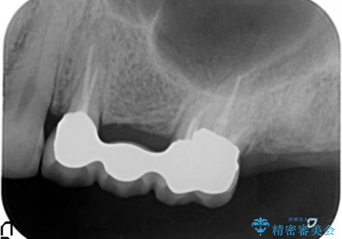 奥歯でものが咬めない 40代女性の治療中