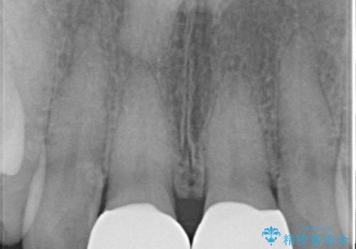 欠けた歯 セラミック治療での審美回復の治療後
