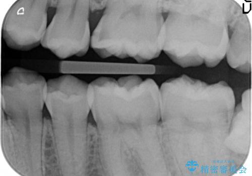 セラミックインレー 虫歯治療の治療前