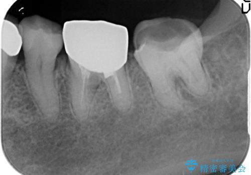 銀歯が外れた オールセラミッククラウンの治療前