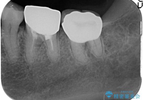 銀歯が外れた オールセラミッククラウンの治療後