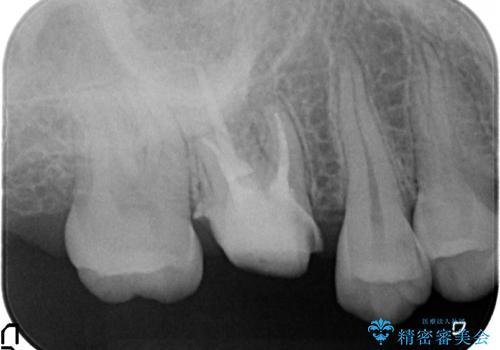 オールセラミッククラウン 歯茎より深い虫歯(縁下カリエス)の治療の治療中