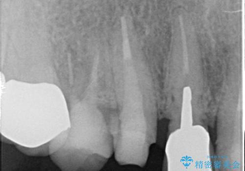 オールセラミッククラウン 歯と被せ物の隙間にできた虫歯の治療の治療中