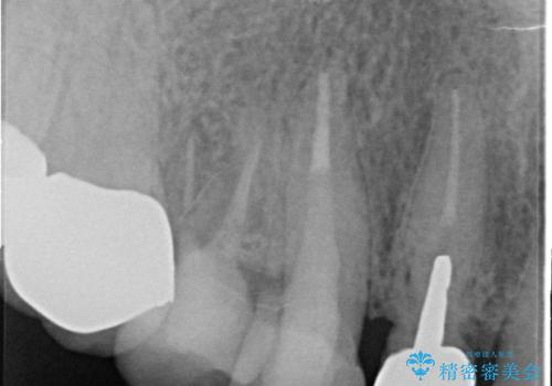 オールセラミッククラウン 歯と被せ物の隙間にできた虫歯の治療の治療後
