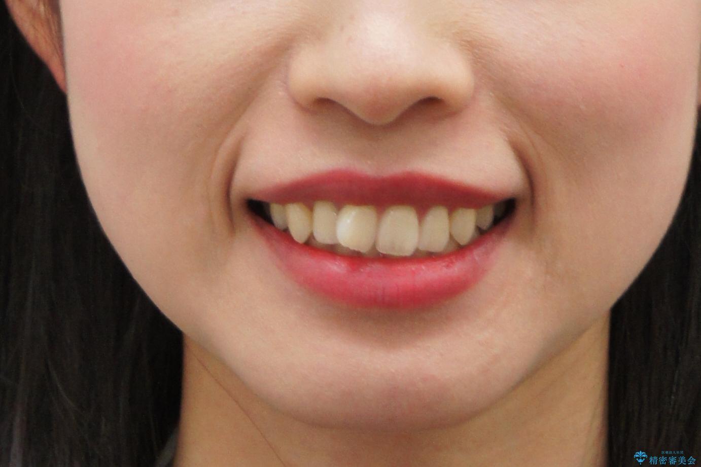 前歯のねじれ マウスピース矯正での治療前(顔貌)