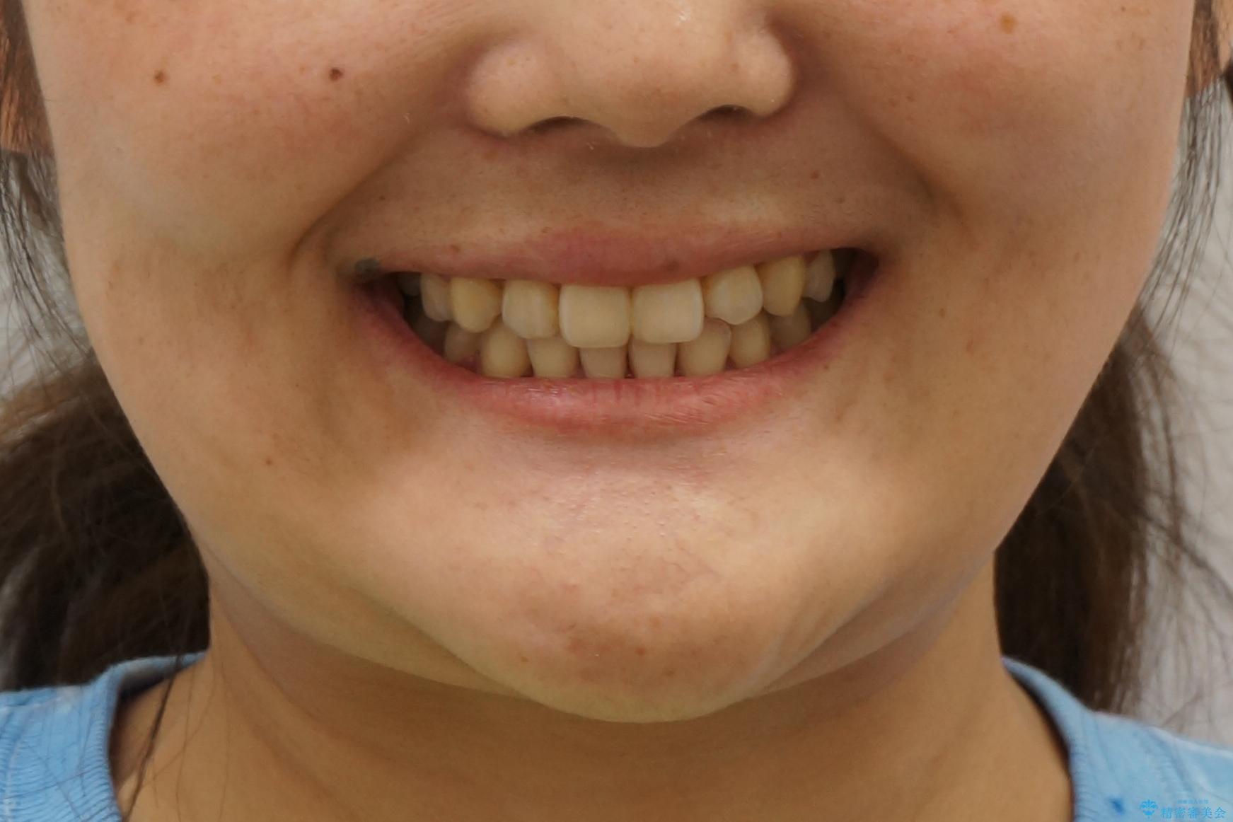 八重歯 ハーフリンガルで 乳歯が残っているの治療後(顔貌)