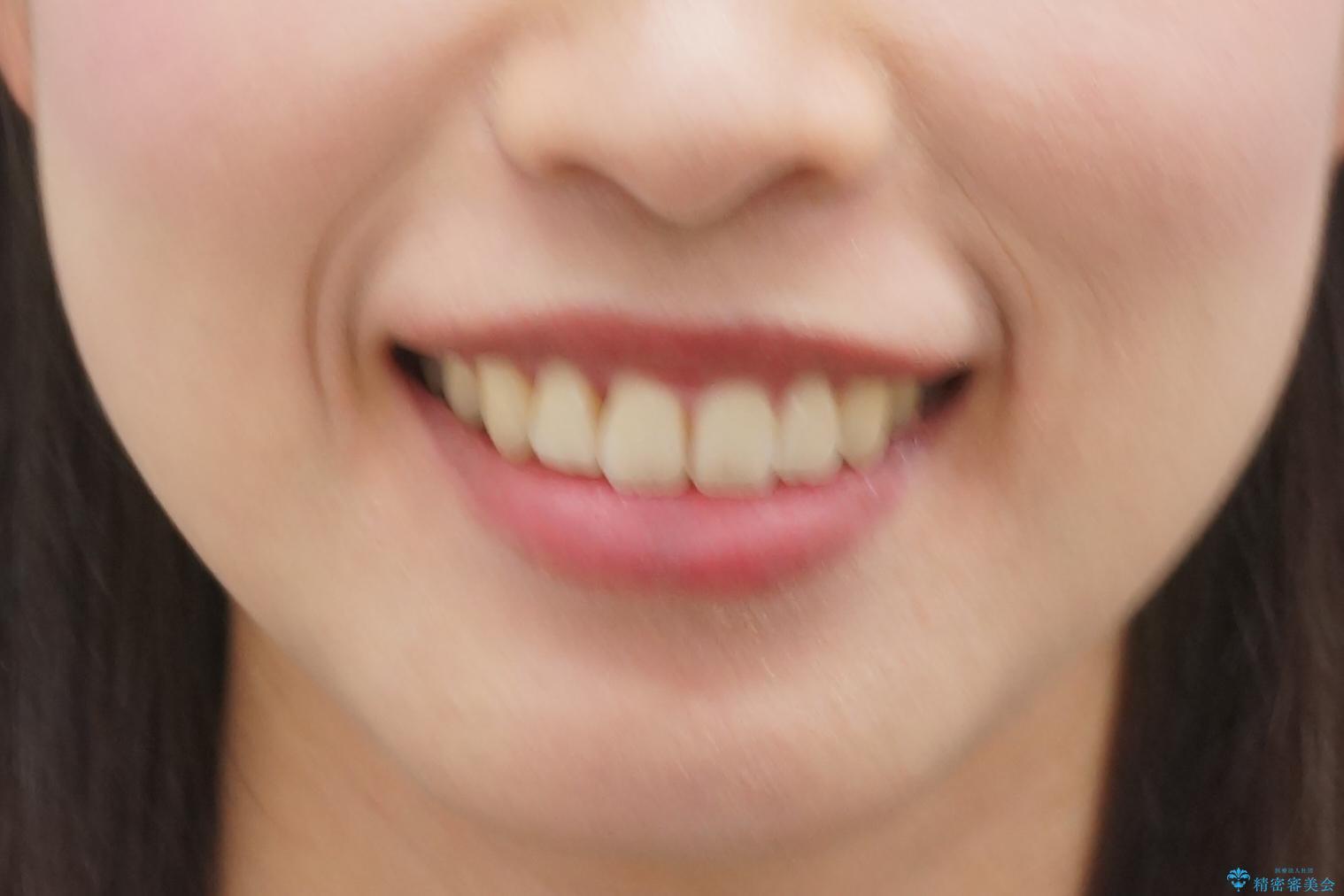 前歯のねじれ マウスピース矯正での治療後(顔貌)