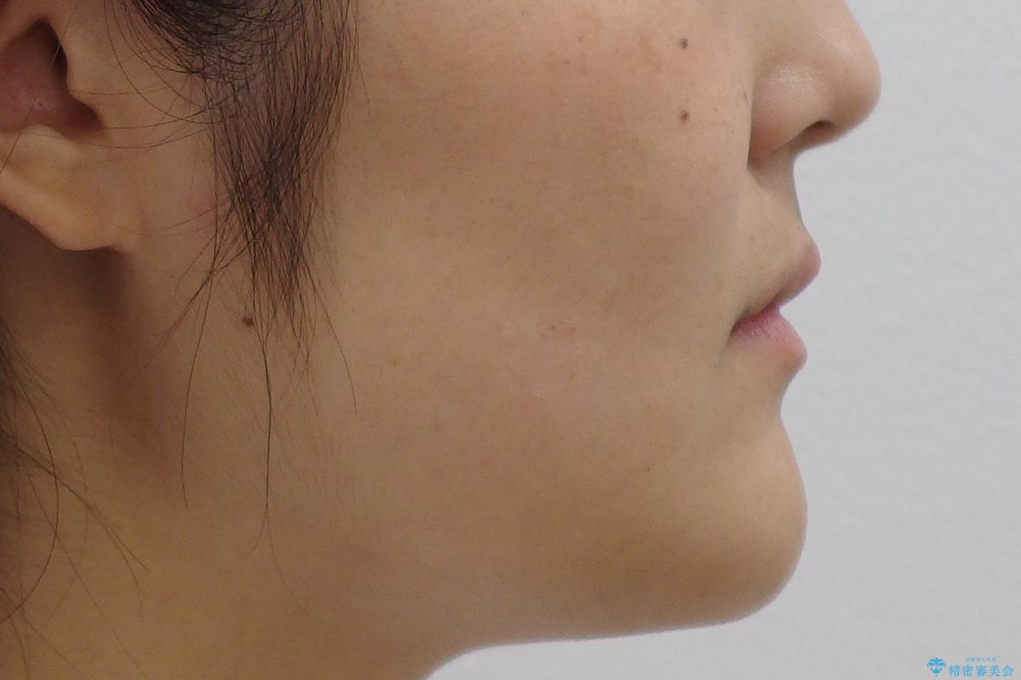 八重歯 ハーフリンガルで 乳歯が残っているの治療前(顔貌)