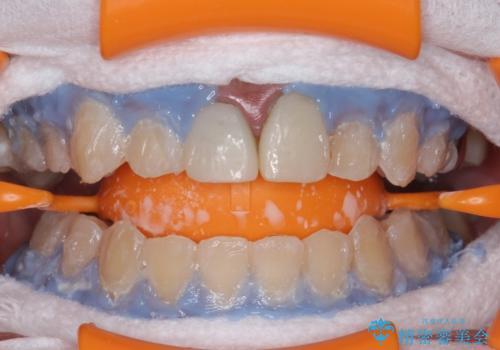ホワイトニングエクセレントコースで歯を白く。1回目の治療中
