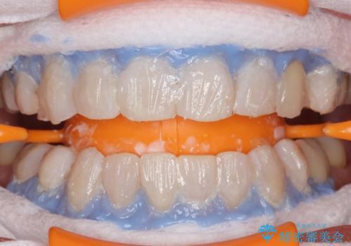白い歯で素敵な笑顔に。の治療中