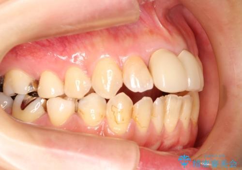 出っ歯が気になる オープンバイトを伴う前突症のインビザライン治療・セラミック治療 invisalignの治療前