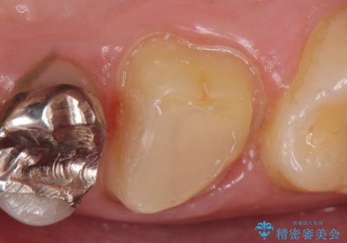 オールセラミッククラウン 痛みが引かない歯の治療の治療中