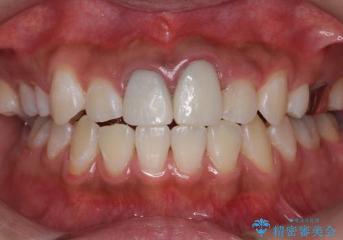 ホワイトニングエクセレントコースで歯を白く。1回目の症例 治療後