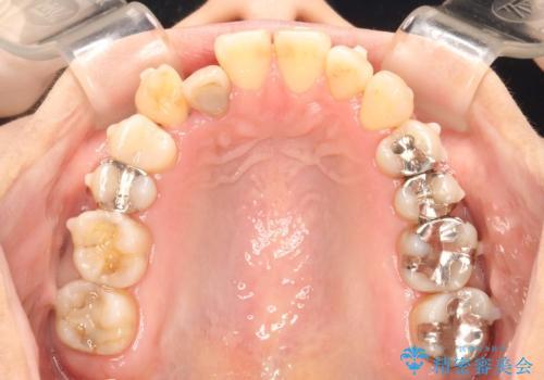 八重歯と反対咬合、下の前歯が1本少ない インビザラインによる非抜歯治療 invisalignの治療中