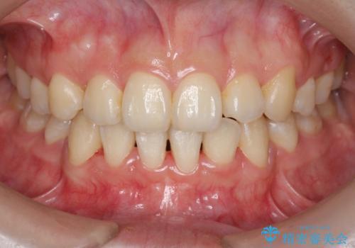 八重歯 ハーフリンガルで 乳歯が残っているの症例 治療後