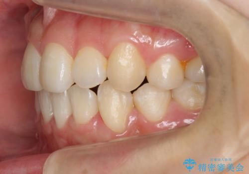 八重歯 ハーフリンガルで 乳歯が残っているの治療後