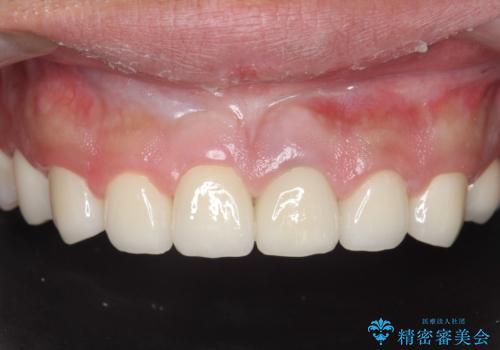 オールセラミッククラウン 全体的な歯の治療の治療後