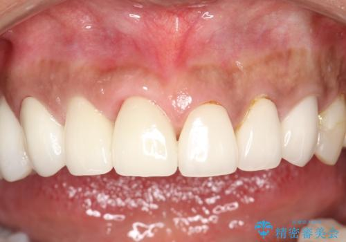 前歯のかぶせものの下に巨大な虫歯が ぎりぎり抜歯をまぬがれるにはの治療後