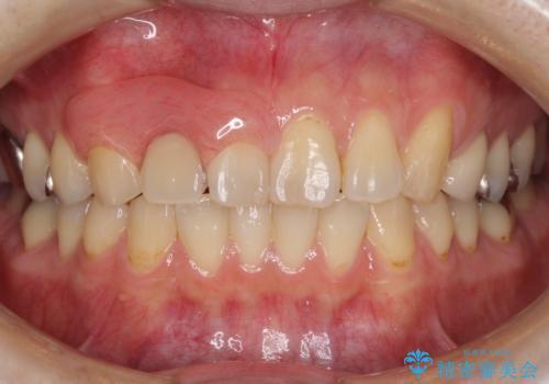 前歯の入れ歯 金属の見えないノンクラスプデンチャーの治療後