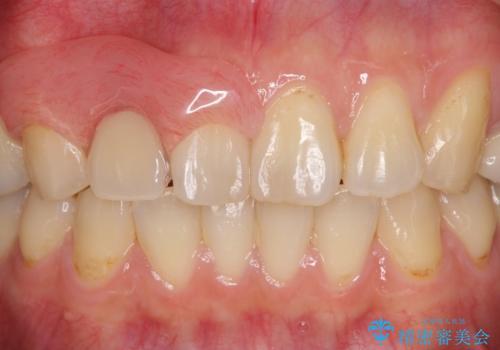 入れ歯の症例 治療後