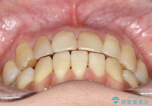 八重歯と反対咬合、下の前歯が1本少ない インビザラインによる非抜歯治療 invisalignの治療後