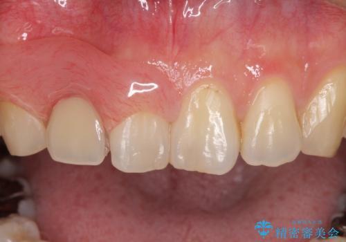 前歯の入れ歯 金属の見えないノンクラスプデンチャーの治療中