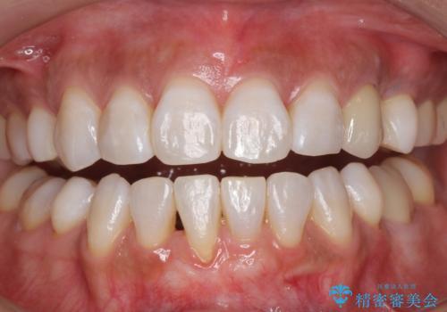 白い歯で素敵な笑顔に。の症例 治療後