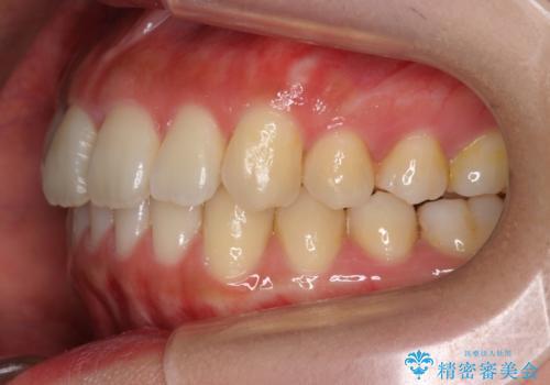 前歯のねじれ マウスピース矯正での治療後