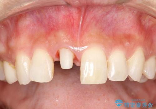 金属製の前歯をメタルフリーにしたい 単独前歯のセラミック処理の治療中
