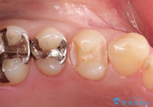 笑ったら見える部分のむし歯治療。セラミックインレーの治療中