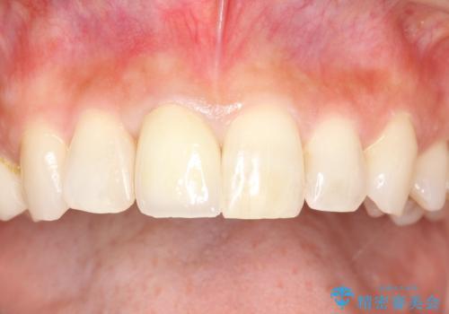 金属製の前歯をメタルフリーにしたい 単独前歯のセラミック処理の治療後