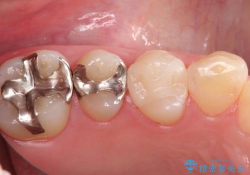 笑ったら見える部分のむし歯治療。セラミックインレーの症例 治療後