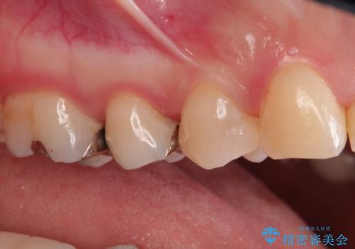 笑ったら見える部分のむし歯治療。セラミックインレーの治療後
