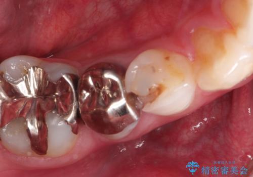 虫歯の治療 適合の良いセラミッククラウンの治療前