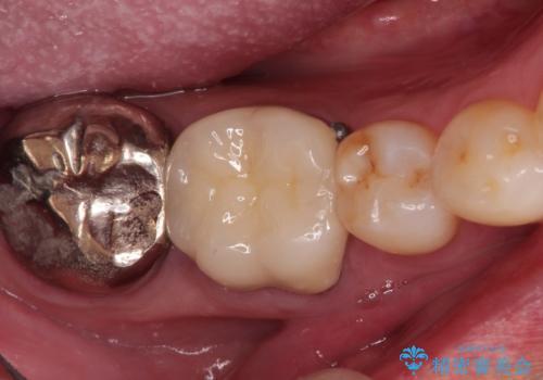 奥歯がかけた。セラミッククラウンによる修復の治療後