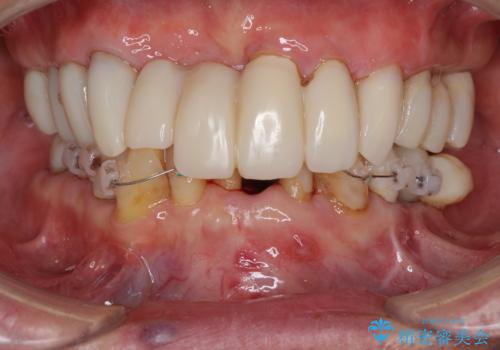 ボロボロの歯を何とかしたい 総合歯科治療による全顎治療の治療中
