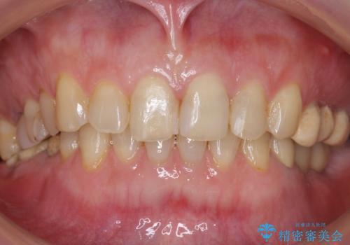 奥歯でものが咬めない 40代女性の治療前