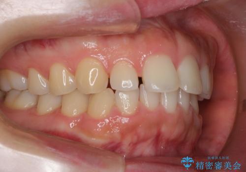 インビザラインでスキッ歯をきれいになおす invisalignの治療前