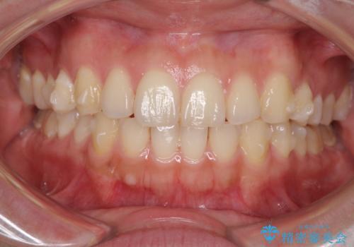 インビザラインで前歯のガタつきの改善の治療中