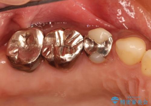 分岐部病変の奥歯→一見問題なさそうだが、抜歯しなければならないの治療前