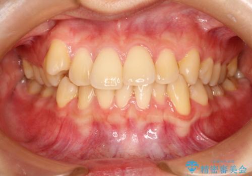 インビザラインで八重歯の矯正の症例 治療前