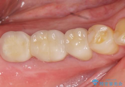 奥歯でものが咬めない 40代女性の治療後