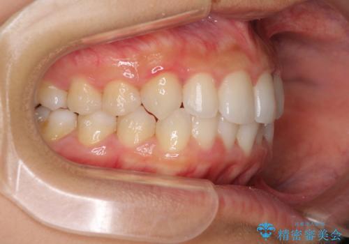 前歯のデコボコを治したい インビザラインによる非抜歯矯正治療の治療中