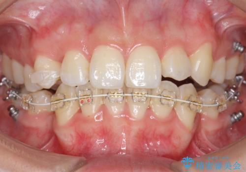 八重歯 ハーフリンガルで 乳歯が残っているの治療中
