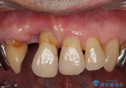 ボロボロの歯を何とかしたい 総合歯科治療による全顎治療の治療前